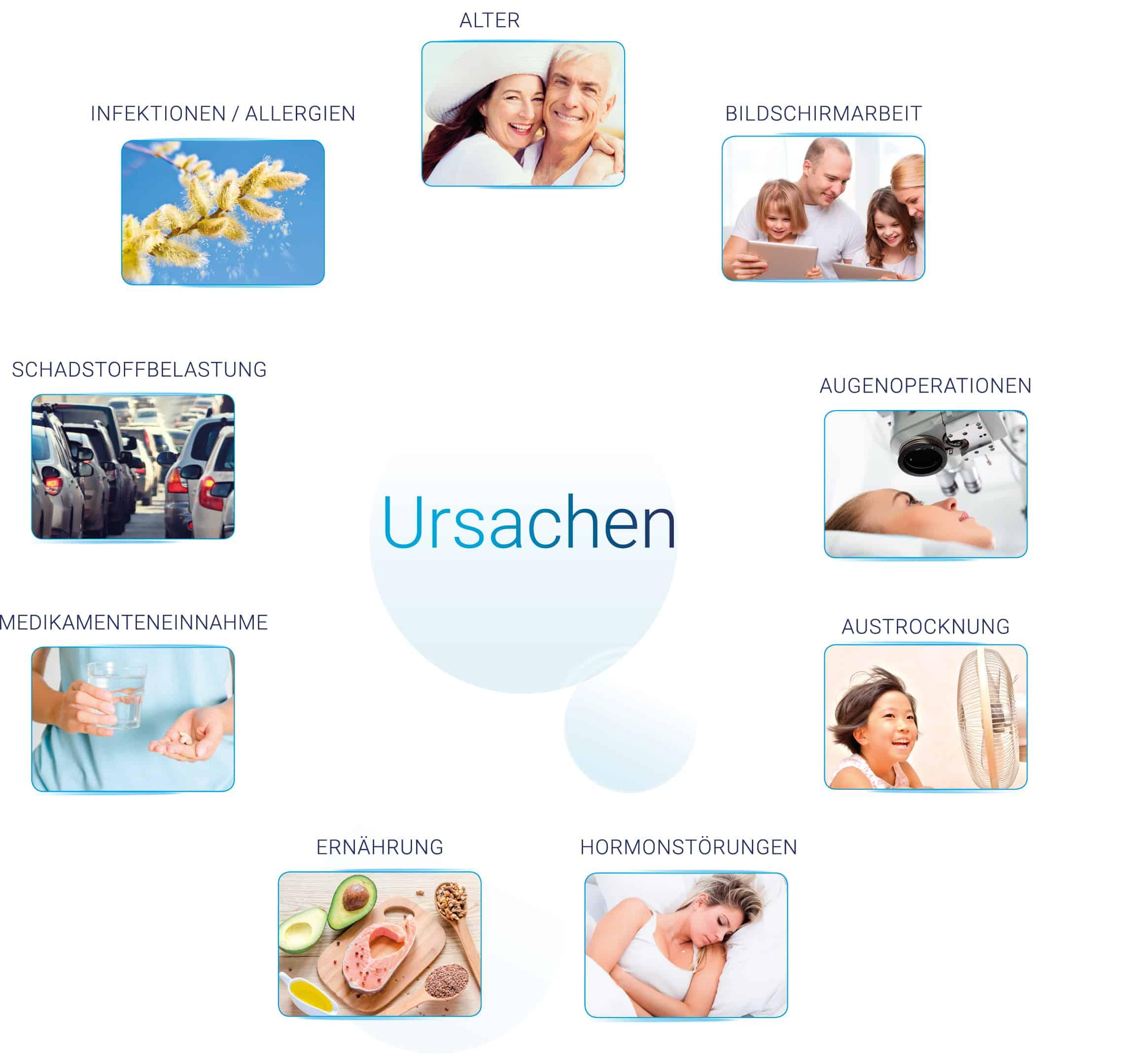 trockene Augen - Ursachen: Medikamenteneinnahme | Infektionen | Allergien | Ernährung | Austrocknung | Schadstoffe | Alter | Bildschirmarbeit | Hormonstörung | Augenoperationen