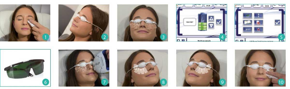 Behandlungsschritte mit dem E-Eye im Überblick